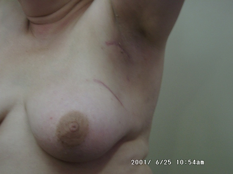 קובץ:Breastcancer4312.png