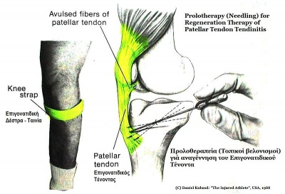 -Needling Therapy for Patellar Tendonitis.JPG